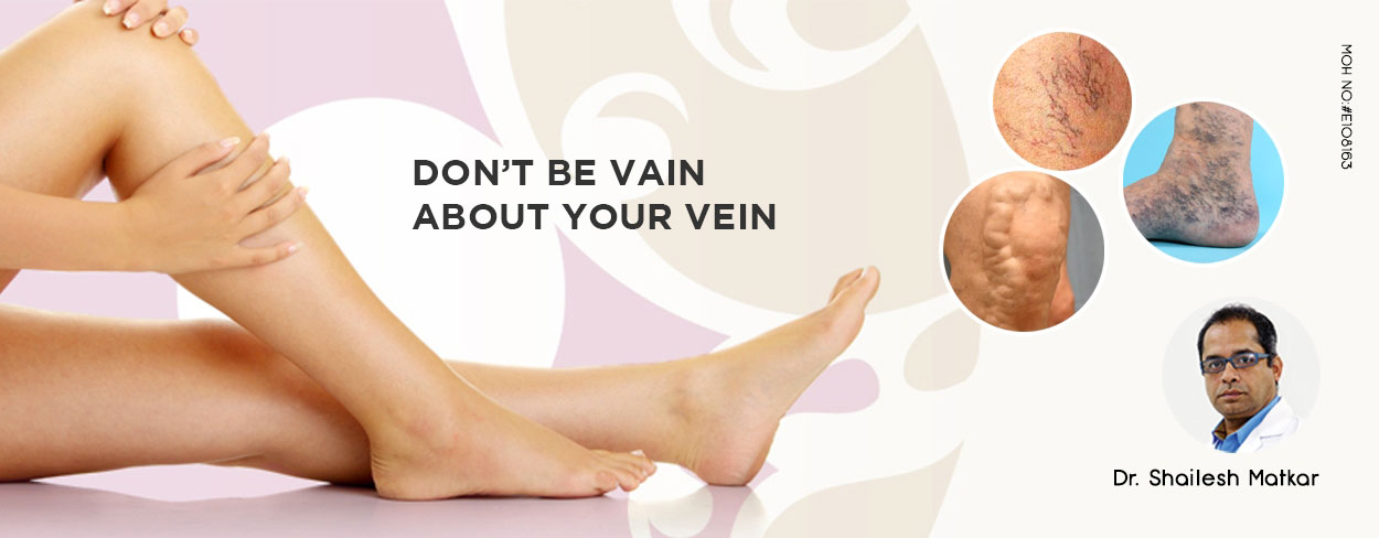 DON'T BE VAIN ABOUT YOUR VEIN