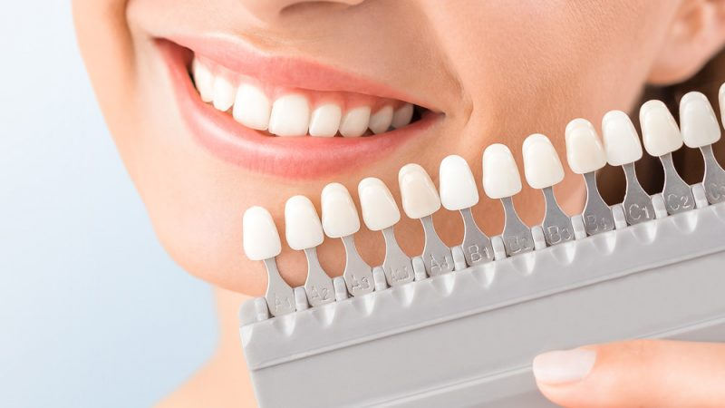 What is The Hollywood Smile? The Magic that is Veneers on Teeth